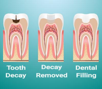 Dental Filling